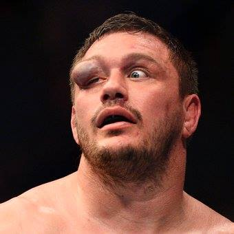 Matt Mitrione's eye swells during a recent fight with Travis Browne