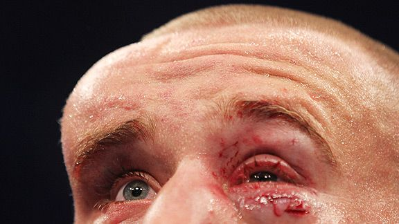 Mark Hominick's head swells massively during UFC 129 bout with Jose Aldo.