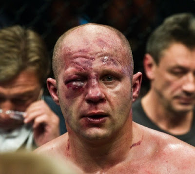 "Fedor after fight with Antonio ""Bigfoot"" Silva"