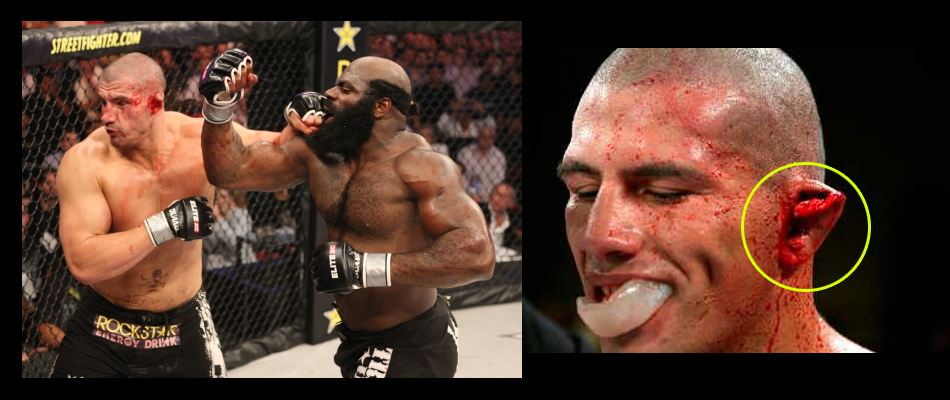 Kimbo Slice vs James Thompson