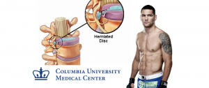 Chris Weidman will undergo surgery on herniated discs on Wednesday at Columbia University Medical Center